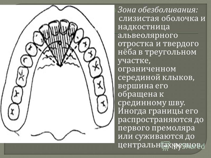 Зона обезболивания : слизистая оболочка и надкостница альвеолярного отростка и твердого нёба в треугольном участке, ограниченном серединой клыков, вершина его обращена к срединному шву. Иногда границы его распространяются до первого премоляра или суж