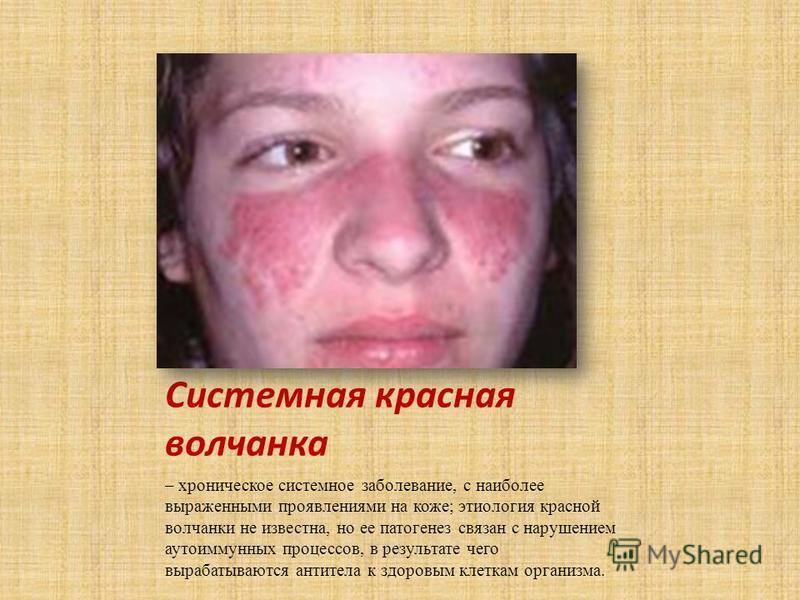 Системная красная волчанка – хроническое системное заболевание, с наиболее выраженными проявлениями на коже; этиология красной волчанки не известна, но ее патогенез связан с нарушением аутоиммунных процессов, в результате чего вырабатываются антитела