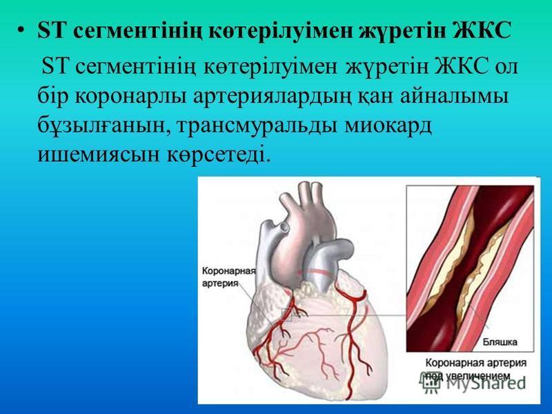 ST сегментінің көтерілуімен жүретін ЖКС ST сегментінің көтерілуімен жүретін ЖКС ол бір коронарлы артериялардың қан айналымы бұзылғанын, трансмуральды миокард ишемия сын көрсетеді.