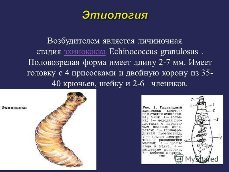 Возбудителем является личиночная стадия эхинококка Echinococcus granulosus. Половозрелая форма имеет длину 2-7 мм. Имеет головку с 4 присосками и двойную корону из 35- 40 крючьев, шейку и 2-6 члеников. эхинококка