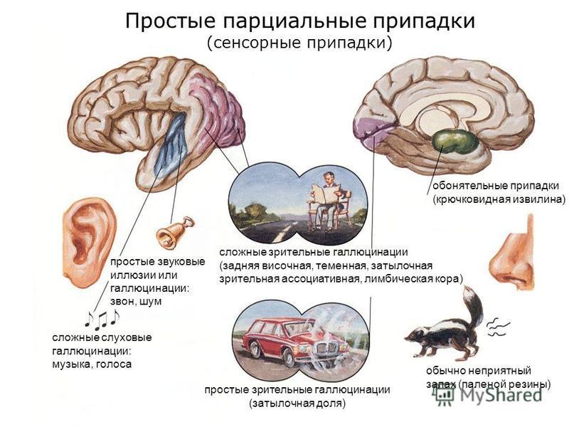 Простые парциальные припадки (сенсорные припадки) простые звуковые иллюзии или галлюцинации: звон, шум сложные слуховые галлюцинации: музыка, голоса обонятельные припадки (крючковидная извилина) обычно неприятный запах (паленой резины) простые зрител