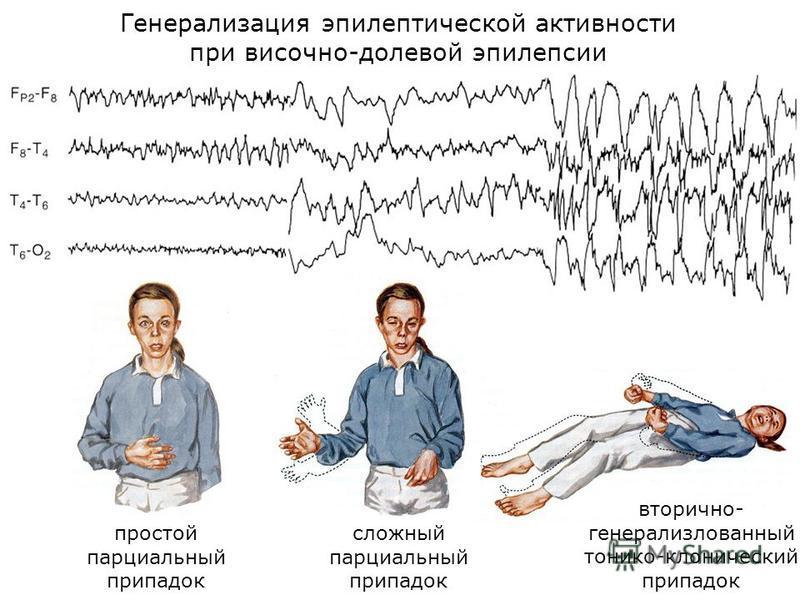Генерализация эпилептической активности при височно-долевой эпилепсии простой парциальный припадок сложный парциальный припадок вторично- генерализлованный тонико-клонический припадок