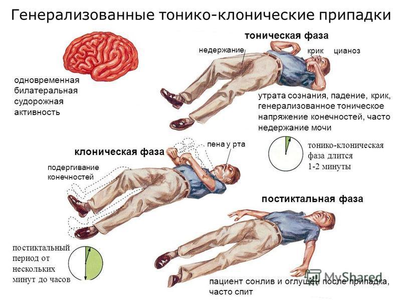 Генерализованные тонико-клонические припадки одновременная билатеральная судорожная активность крик цианоз утрата сознания, падение, крик, генерализованное тоническое напряжение конечностей, часто недержание мочи недержание тоническая фаза клоническа