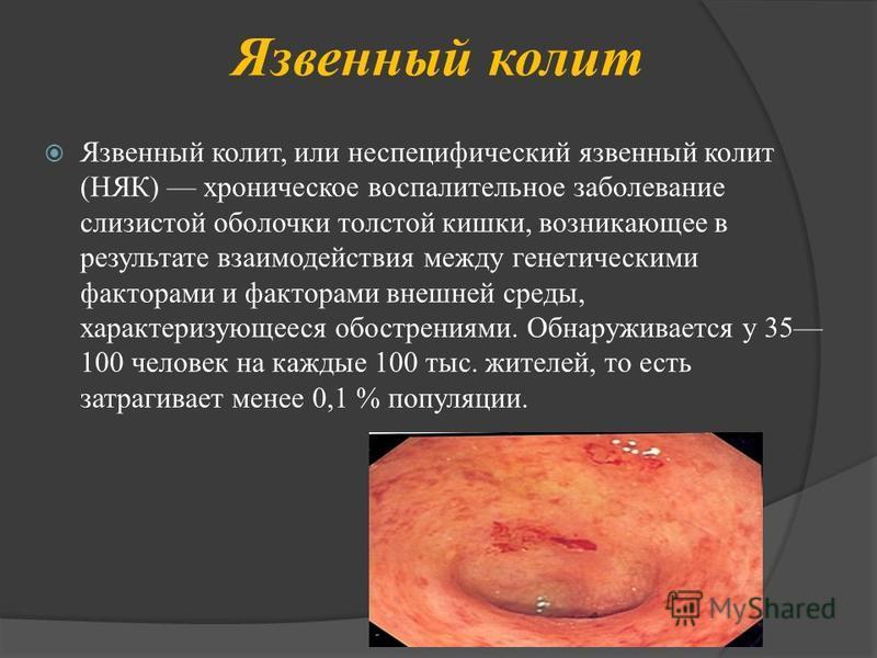 Язвенный колит Язвенный колит, или неспецифический язвенный колит (НЯК) хроническое воспалительное заболевание слизистой оболочки толстой кишки, возникающее в результате взаимодействия между генетическими факторами и факторами внешней среды, характер