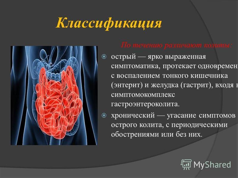 Классификация По течению различают колиты: острый ярко выраженная симптоматика, протекает одновременно с воспалением тонкого кишечника (энтерит) и желудка (гастрит), входя в симптомокомплекс гастроэнтероколита. хронический угасание симптомов острого