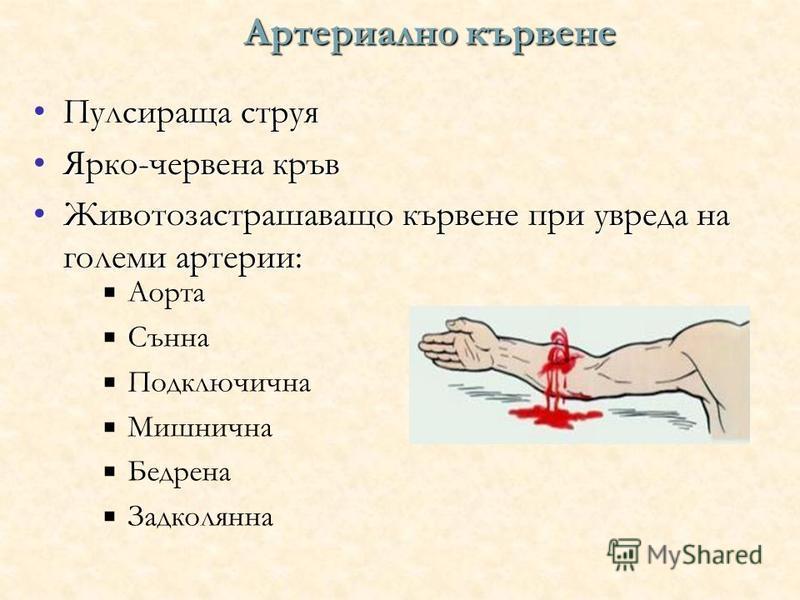 Артериално кървене Пулсираща струяПулсираща струя Ярко-червена кръвЯрко-червена кръв Животозастрашаващо кървене при увреда на големи артерии:Животозастрашаващо кървене при увреда на големи артерии: Аорта Сънна Подключична Мишнична Бедрена Задколянна