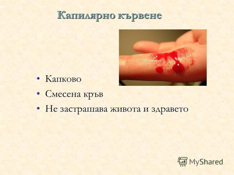 Капилярно кървене КапковоКапково Смесена кръвСмесена кръв Не застрашава живота и здраветоНе застрашава живота и здравето
