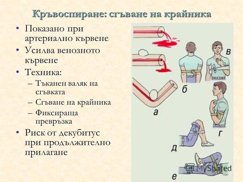 Кръвоспиране: сгъване на крайника Показано при артериално кървенеПоказано при артериално кървене Усилва венозното кървенеУсилва венозното кървене Техника:Техника: –Тъканен валяк на сгъвката –Сгъване на крайника –Фиксираща превръзка Риск от декубитус