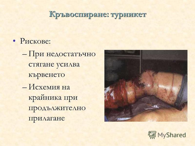 Кръвоспиране: турникет Рискове:Рискове: –При недостатъчно стягане усилва кървенето –Исхемия на крайника при продължително прилагане