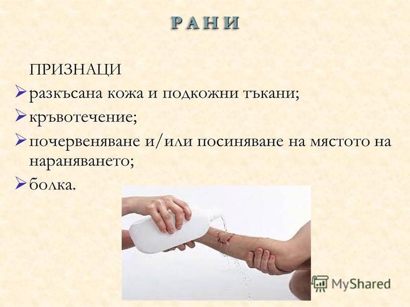 Р А Н И ПРИЗНАЦИ разкъсана кожа и подкожни тъкани; кръвотечение; почервеняване и/или посиняване на мястото на нараняването; болка.