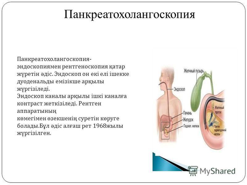 Панкреатохолангоскопия Панкреатохолангоскопия - эндоскопиямен рентгеноскопия қатар жүретін әдіс. Эндоскоп он екі елі ішекке дуоденальды емізікше арқылы жүргізіледі. Эндоскоп каналы арқылы ішкі каналға контраст жеткізіледі. Рентген аппаратының көмегім