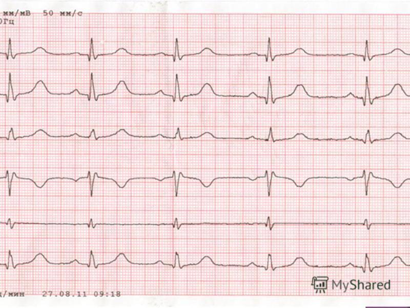 Кардиограмма - график работы сердца. Кардиограмма - это запись сокращений сердца человека, которая осуществляется при помощи какого-либо инструментального способа. Суть электрографии заключается в том, чтобы зарегистрировать разности потенциала во вр