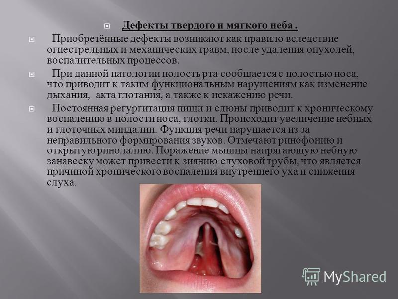 Дефекты твердого и мягкого неба. Приобретённые дефекты возникают как правило вследствие огнестрельных и механических травм, после удаления опухолей, воспалительных процессов. При данной патологии полость рта сообщается с полостью носа, что приводит к