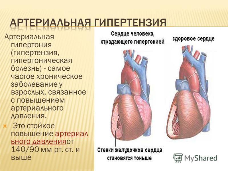 Артериальная гипертония (гипертензия, гипертоническая болезнь) - самое частое хроническое заболевание у взрослых, связанное с повышением артериального давления. Это стойкое повышение артериального давления от 140/90 мм рт. ст. и вышеартериального дав
