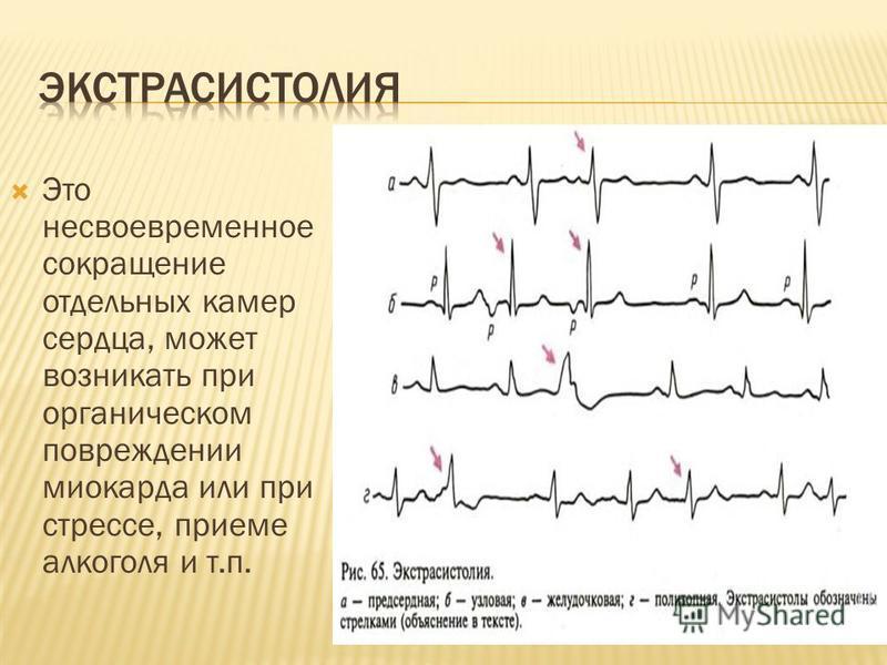 Это несвоевременное сокращение отдельных камер сердца, может возникать при органическом повреждении миокарда или при стрессе, приеме алкоголя и т.п.