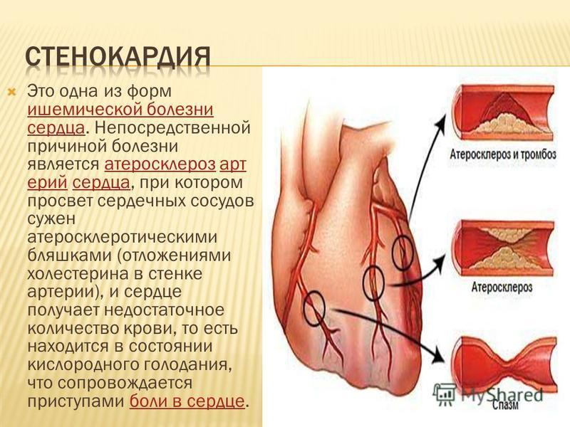 Это одна из форм ишемической болезни сердца. Непосредственной причиной болезни является атеросклероз артерий сердца, при котором просвет сердечных сосудов сужен атеросклеротическими бляшками (отложениями холестерина в стенке артерии), и сердце получа