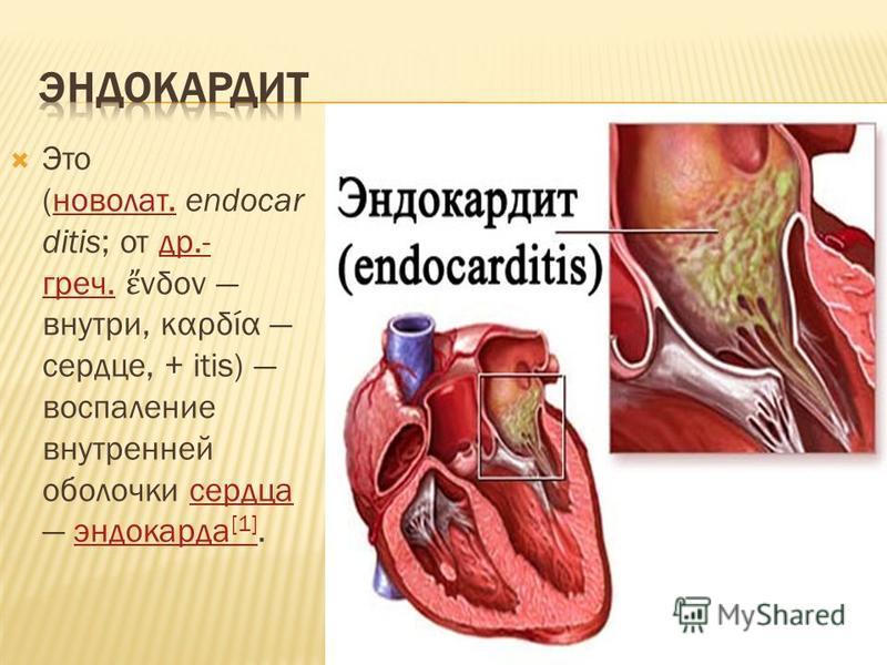 Это (ново лат. endocar ditis; от др.- греч. νδον внутри, καρδία сердце, + itis) воспаление внутренней оболочки сердца эндокарда [1].ново лат.др.- греч.сердца эндокарда [1]
