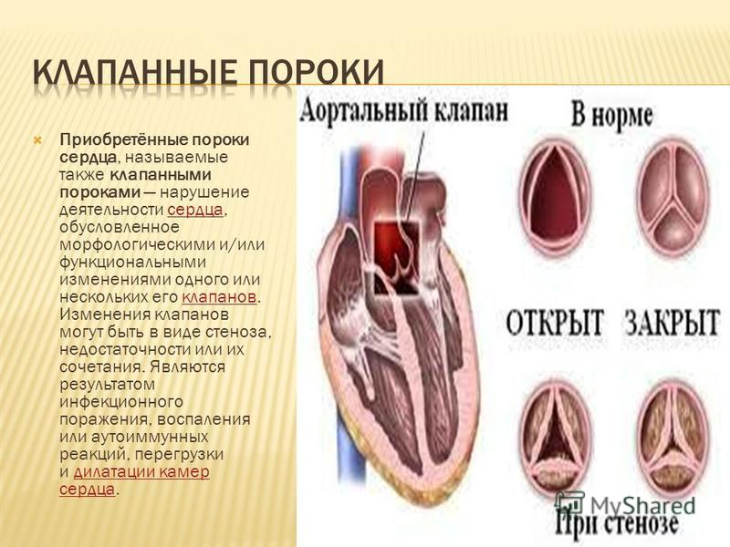 Приобретённые пороки сердца, называемые также клапанными пороками нарушение деятельности сердца, обусловленное морфологическими и/или функциональными изменениями одного или нескольких его клапанов. Изменения клапанов могут быть в виде стеноза, недост