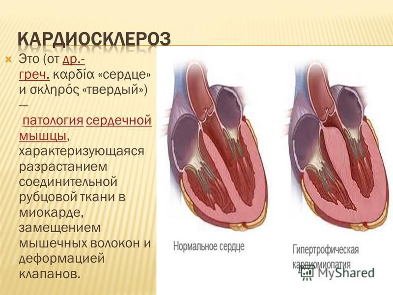Это (от др.- греч. καρδία «сердце» и σκληρός «твердый») патология сердечной мышцы, характеризующаяся разрастанием соединительной рубцовой ткани в миокарде, замещением мышечных волокон и деформацией клапанов.др.- греч.патология сердечной мышцы