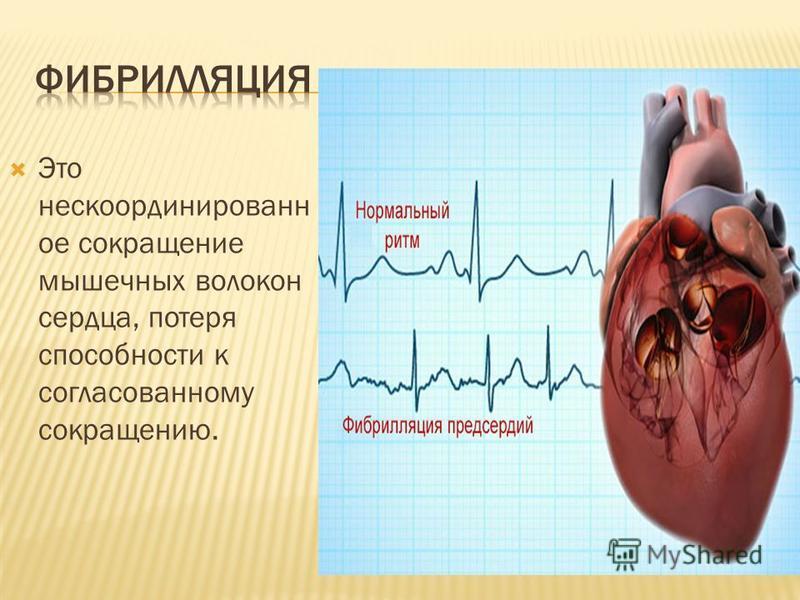 Это не с координированное сокращение мышечных волокон сердца, потеря способности к согласованному сокращению.