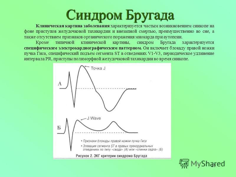 25 Синдром Бругада Клиническая картина заболевания характеризуется частым возникновением синкопе на фоне приступов желудочковой тахикардии и внезапной смертью, преимущественно во сне, а также отсутствием признаков органического поражения миокарда при