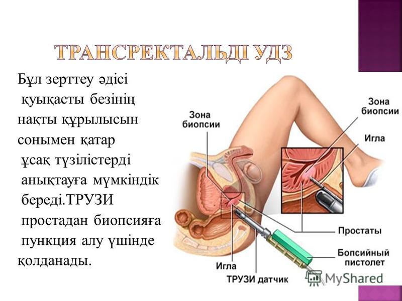 Бұл зерттеу әдісі қуфықасты безінің нақты құрилысын сонымен қатар ұсақ түзілістерді аннықтауға мүмкіндік береді.ТРУЗИ простадан биопсияға пункция алу үшінде қолданаты.