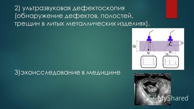 2) ультразвуковая дефектоскопия (обнаружение дефектов, полостей, трещин в литых металлических изделиях), 3)эхо исследование в медицине