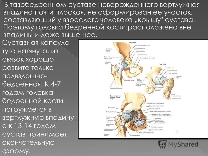 В тазобедренном суставе новорожденного вертлужная впадина почти плоская, не сформирован ее участок, составляющий у взрослого человека крышу