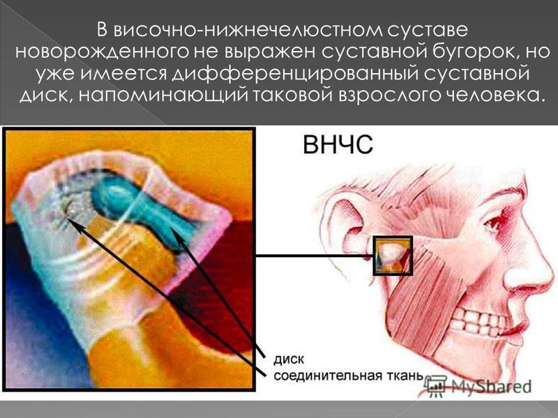 В височно-нижнечелюстном суставе новорожденного не выражен суставной бугорок, но уже имеется дифференцированный суставной диск, напоминающий таковой взрослого человека.