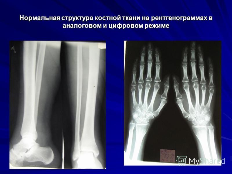 Нормальная структура костной ткани на рентгенограммах в аналоговом и цифровом режиме