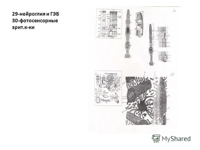 29-нейроглия и ГЭБ 30-фотосенсорные зрит.к-ки