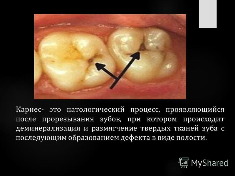 Кариес- это патологический процесс, проявляющийся после прорезывания зубов, при котором происходит деминерализация и размягчение твердых тканей зуба с последующим образованием дефекта в виде полости.