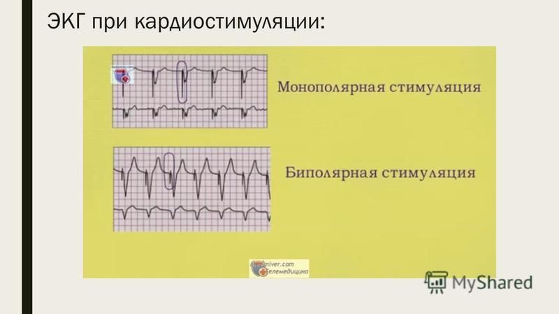 ЭКГ при кардиостимуляции: