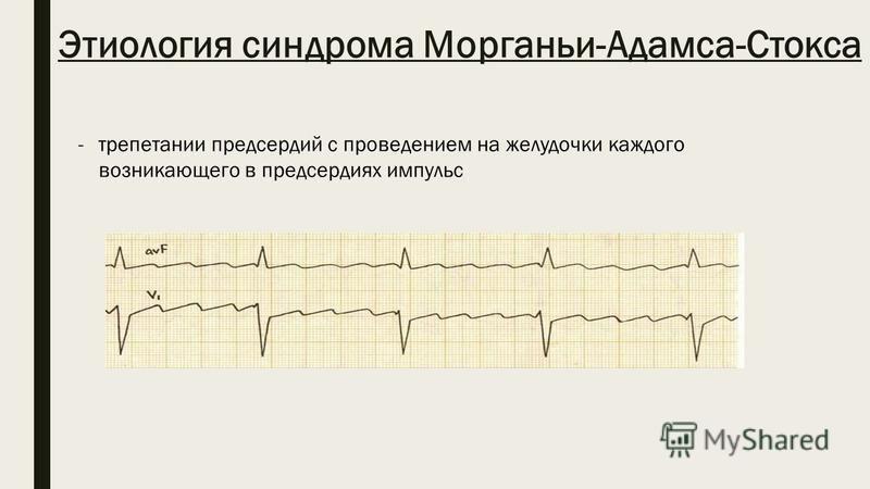 Этиология синдрома Морганьи-Адамса-Стокса -трепетании предсердий с проведением на желудочки каждого возникающего в предсердиях импульс