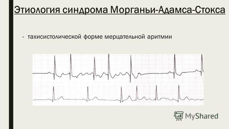 Этиология синдрома Морганьи-Адамса-Стокса -тахисистолической форме мерцательной аритмии