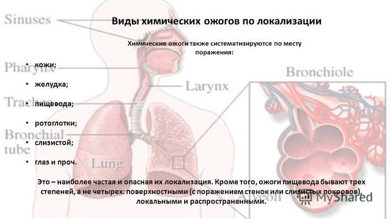 Виды химических ожогов по локализации Химические ожоги также систематизируются по месту поражения: кожи; желудка; пищевода; ротоглотки; слизистой; глаз и проч. Это – наиболее частая и опасная их локализация. Кроме того, ожоги пищевода бывают трех сте