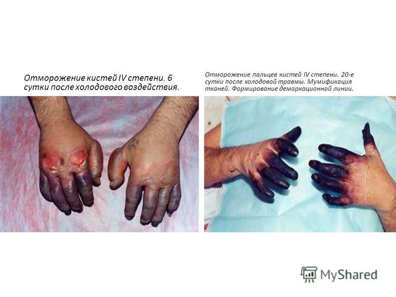 Отморожение кистей IV степени. 6 сутки после холодового воздействия. Отморожение пальцев кистей IV степени. 20-е сутки после холодовой травмы. Мумификация тканей. Формирование демаркационной линии.