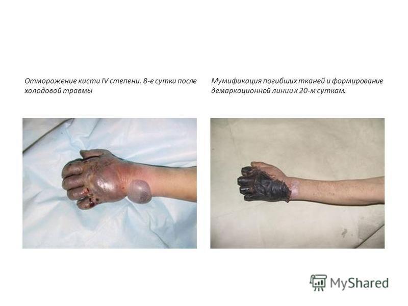 Отморожение кисти IV степени. 8-е сутки после холодовой травмы Мумификация погибших тканей и формирование демаркационной линии к 20-м суткам.