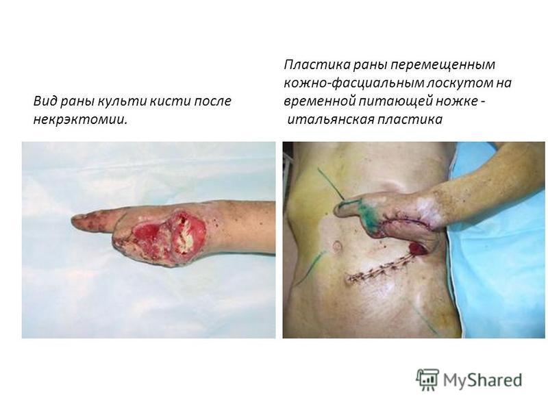 Вид раны культи кисти после некрэктомии. Пластика раны перемещенным кожно-фасциальным лоскутом на временной питающей ножке - итальянская пластика