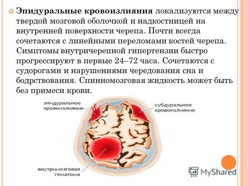 Эпидуральные кровоизлияния нлокализуются между твердой мозговой обонлочкой и надкостницей на внутренней поверхности черепа. Почти всегда сочитаются с линейными перенломами костей черепа. Симптомы внутричерепной гипертензии быстро прогрессируют в перв
