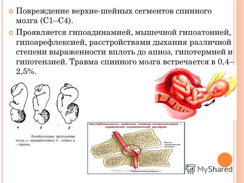 Повреждение верхних-шейных сегментов спинного мозга (С1–С4). Проявляется гиподинамией, мышечной гипоатонией, гипоарефлексией, расстройствами дыхания различной степени выраженности впнлоть до апноэ, гипотермией и гипотензией. Травма спинного мозга вст