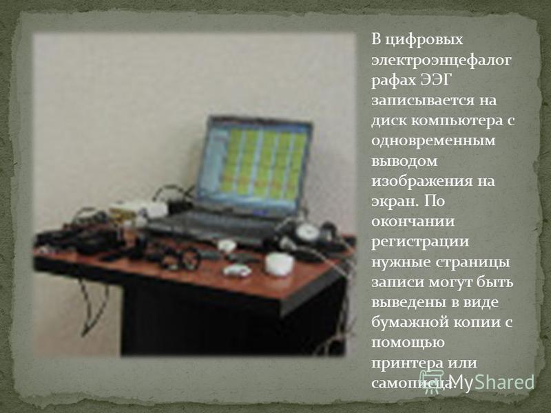 В цифровых электроэнцефалографа х ЭЭГ записывается на диск компьютера с одновременным выводом изображения на экран. По окончании регистрации нужные страницы записи могут быть выведены в виде бумажной копии с помощью принтера или самописца.