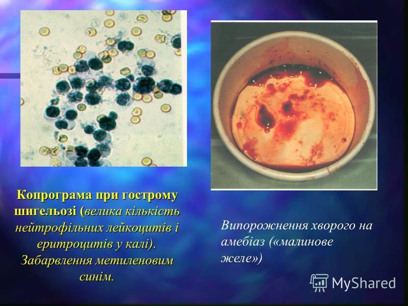 Копрограма при гострому шигельозі (велика кількість нейтрофільних лейкоцитів і еритроцитів у калі). Забарвлення метиленовим синім. Випорожнення хворого на амебіаз («малинове желе»)