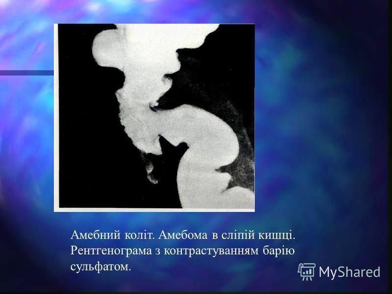 Амебний коліт. Амебома в сліпій кишці. Рентгенограма з контрастуванням барію сульфатом.