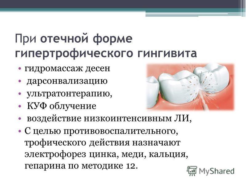 При отечной форме гипертрофического гингивита гидромассаж десен дарсонвализацию ультратонтерапию, КУФ облучение воздействие низкоинтенсивным ЛИ, С целью противовоспалительного, трофического действия назначают электрофорез цинка, меди, кальция, гепари