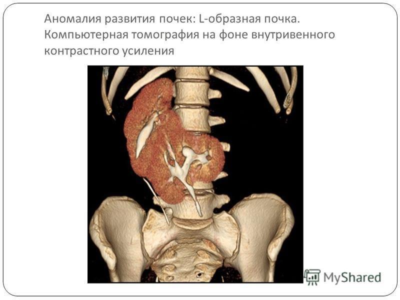 Аномалия развития почек : L- образная почка. Компьютерная томография на фоне внутривенного контрастного усиления