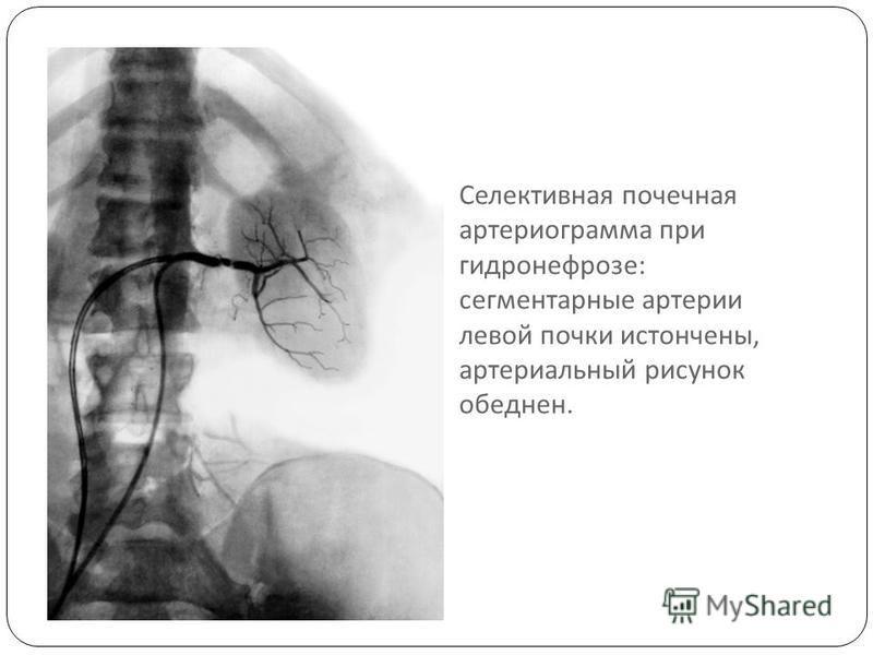 Селективная почечная артериограмма при гидронефрозе : сегментарные артерии левой почки истончены, артериальный рисунок обеднен.