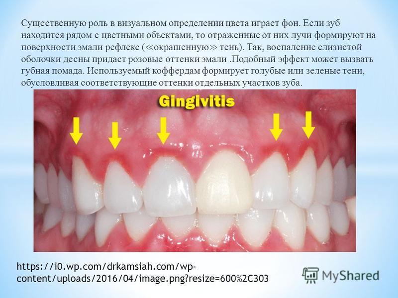 Существенную роль в визуальном определении цвета играет фон. Если зуб находится рядом с цветными объектами, то отраженные от них лучи формируют на поверхности эмали рефлекс ( окрашенную тень). Так, воспаление слизистой оболочки десны придаст розовые