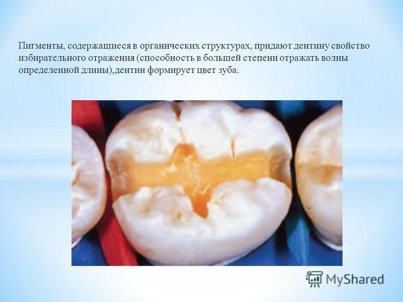 Пигменты, содержащиеся в органических структурах, придают дентину свойство избирательного отражения (способность в большей степени отражать волны определенной длины),дентин формирует цвет зуба.