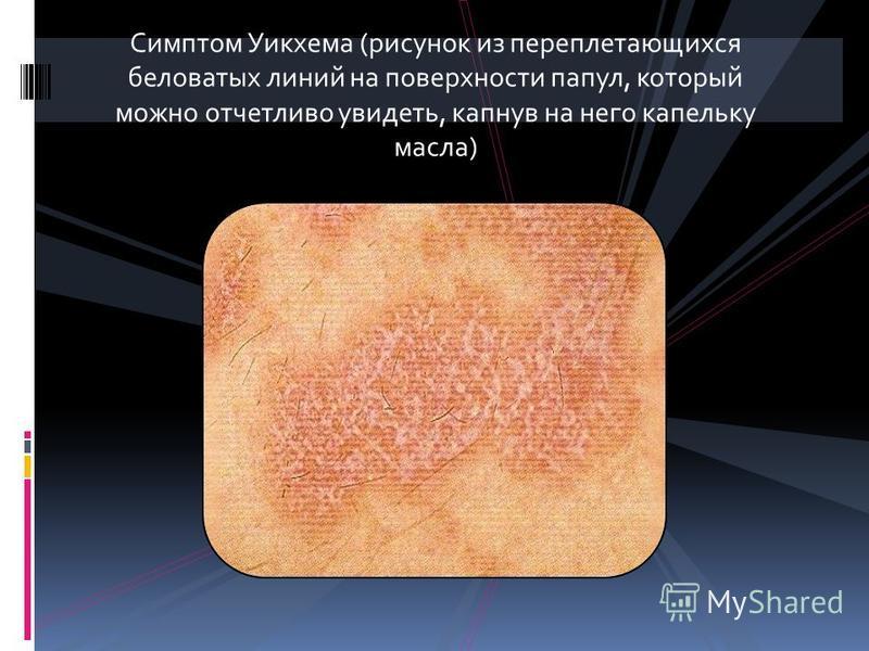 Симптом Уикхема (рисунок из переплетающихся беловатых линий на поверхности папул, который можно отчетливо увидеть, капнув на него капельку масла)